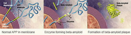 Beta Amyloid Plaque Formation in the Brain