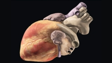 Overview of the Heart
