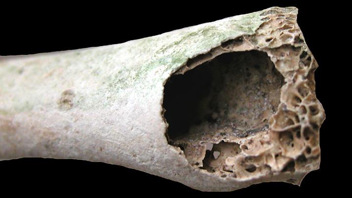 Bone Structure Hollow Vs Solid Bioed Online