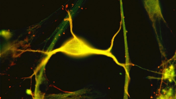 Thumbnail Image for What is a Neuron?